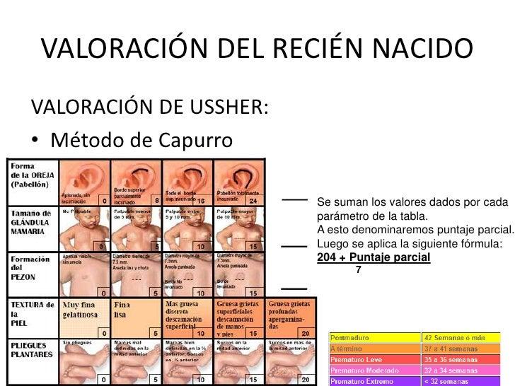 VALORACIÓN DEL RECIÉN NACIDOVALORACIÓN DE USSHER:• Método de Capurro                        Se suman los valores dados por...