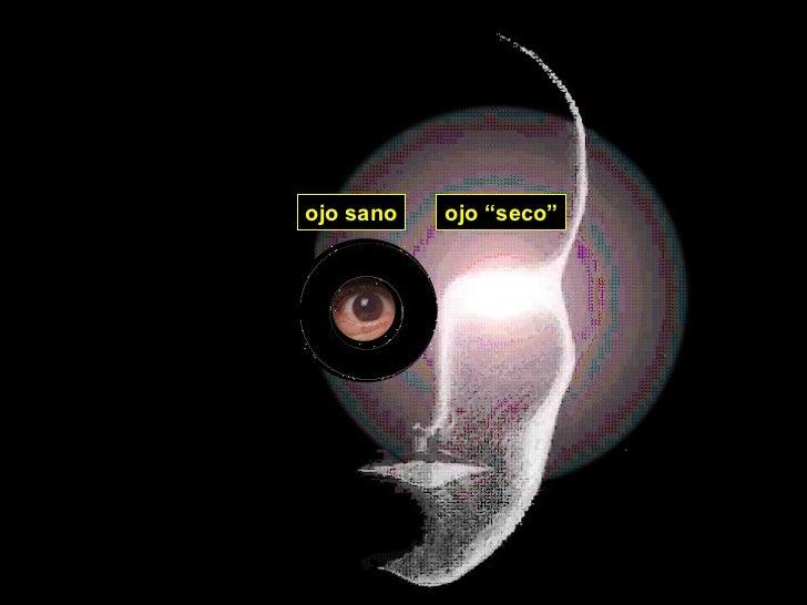 """ojo sano ojo """"seco"""""""