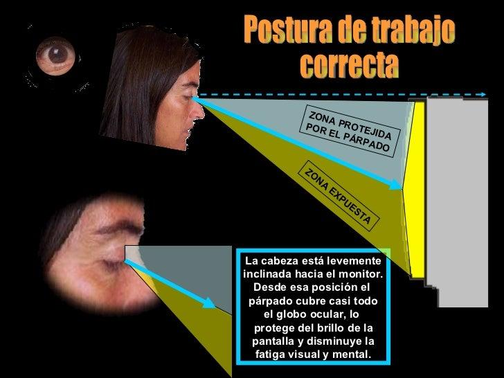 La cabeza está levemente inclinada hacia el monitor. Desde esa posición el  párpado cubre casi todo el globo ocular, lo  p...