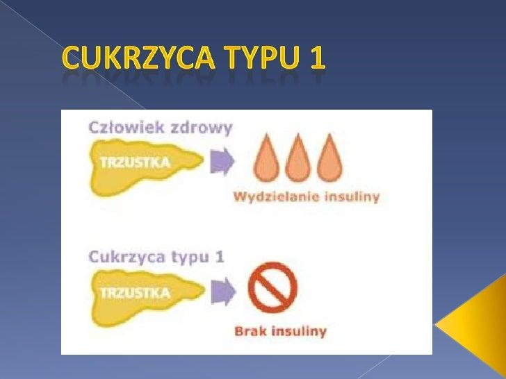 autoimmunologiczne zapalenie trzustki leczenie steroidami