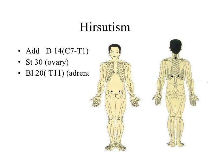 Hirsutism • Add D 14(C7-T1), • St 30 (ovary) • Bl 20( T11) (adrenal)