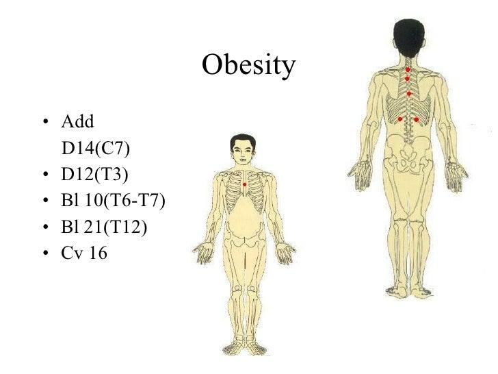 Obesity • Add   D14(C7) • D12(T3) • Bl 10(T6-T7) • Bl 21(T12) • Cv 16