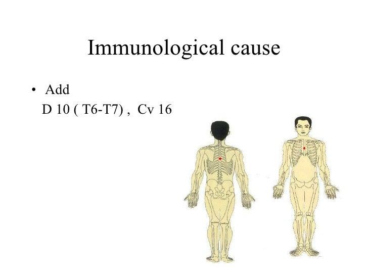 Immunological cause • Add   D 10 ( T6-T7) , Cv 16