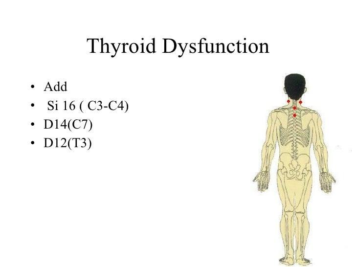 Thyroid Dysfunction •   Add •   Si 16 ( C3-C4) •   D14(C7) •   D12(T3)