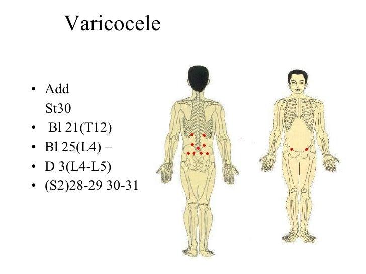 Varicocele  • Add   St30 • Bl 21(T12) • Bl 25(L4) – • D 3(L4-L5) • (S2)28-29 30-31