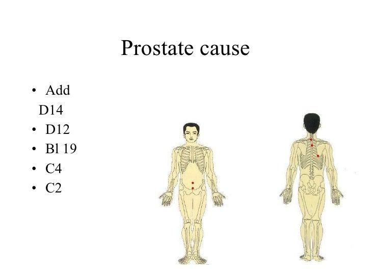 Prostate cause • Add  D14 • D12 • Bl 19 • C4 • C2