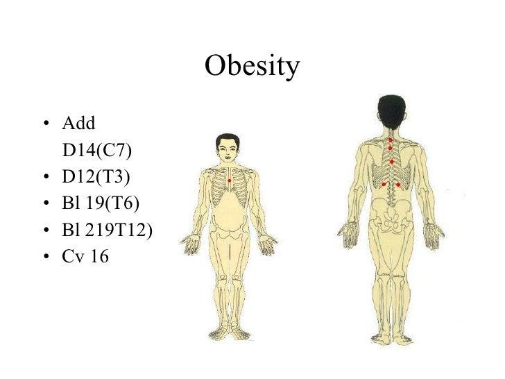Obesity • Add   D14(C7) • D12(T3) • Bl 19(T6) • Bl 219T12) • Cv 16
