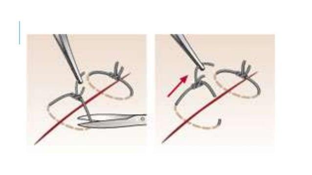 Cuidados de enfermería: Curación de las heridas quirúrgicas