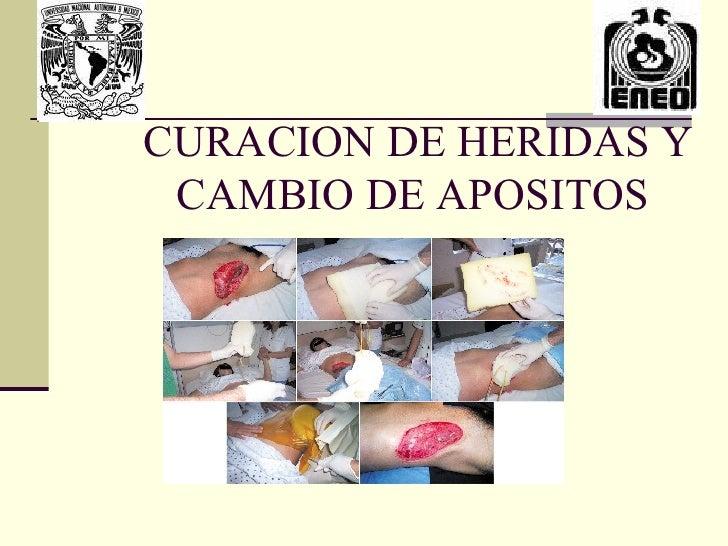 CURACION DE HERIDAS Y CAMBIO DE APOSITOS