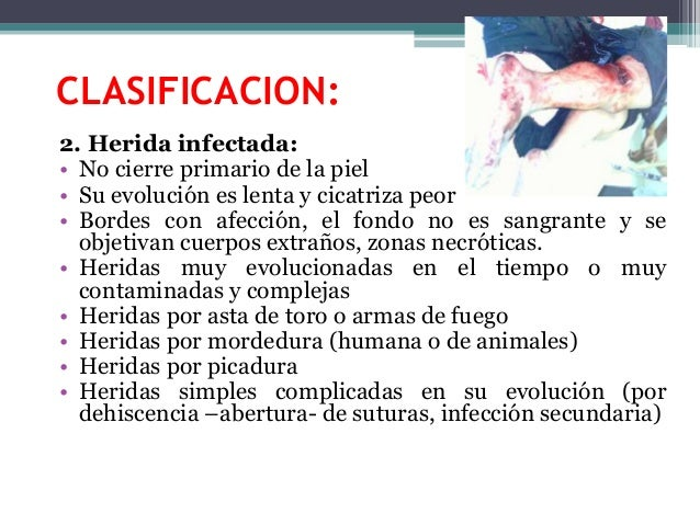 CLASIFICACION: 2. Herida infectada: • No cierre primario de la piel • Su evolución es lenta y cicatriza peor • Bordes con ...