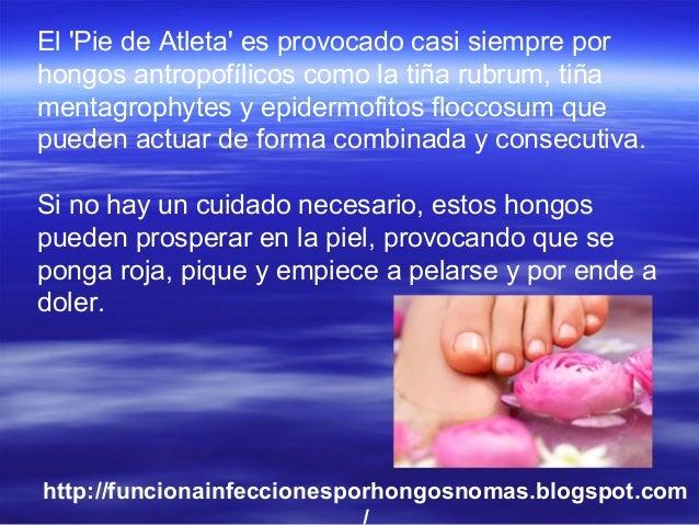 El 'Pie de Atleta' es provocado casi siempre por hongos antropofílicos como la tiña rubrum, tiña mentagrophytes y epidermo...
