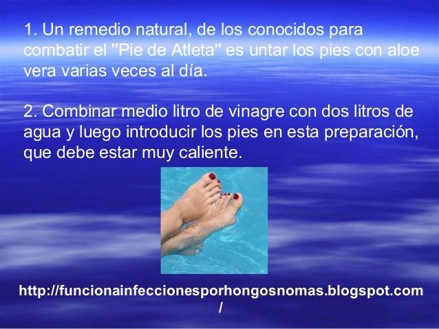 Si es posible sanar por el peróxido el hongo de los pie