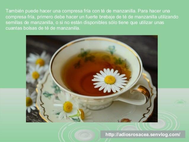 3 remedios caseros para tratar la ros cea - Remedios caseros para la humedad ...