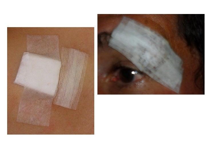 Lesão de pele em rn prematuros revisão integrativa 2