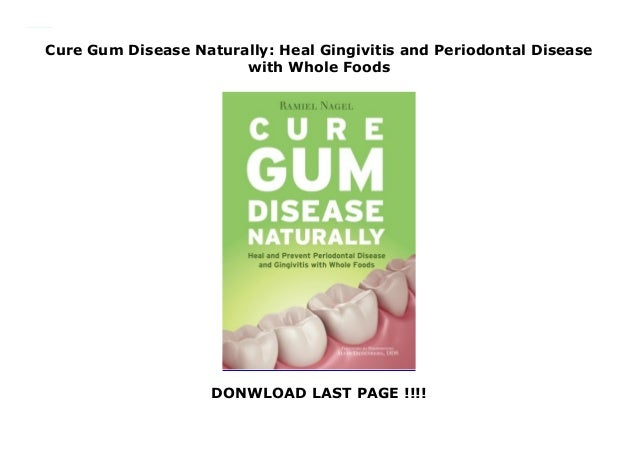 Cure Gum Disease Naturally: Heal Gingivitis and Periodontal