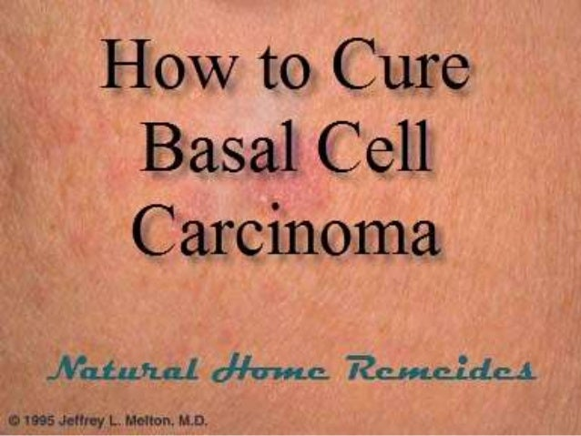 Cure Basal Cell Carcinaoma With Natural Home Remedies
