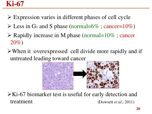 Ki67 in breast cancer