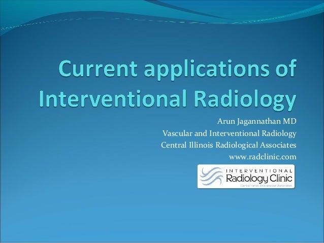 Arun Jagannathan MD Vascular and Interventional Radiology Central Illinois Radiological Associates www.radclinic.com
