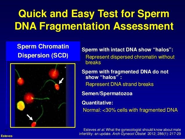 Y chromosome microdeletion  Tests  GTR  NCBI