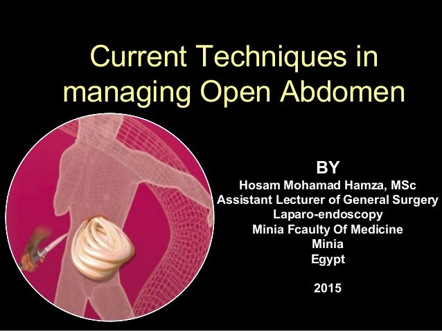 Current Techniques in managing Open Abdomen BY Hosam Mohamad Hamza, MSc Assistant Lecturer of General Surgery Laparo-endos...