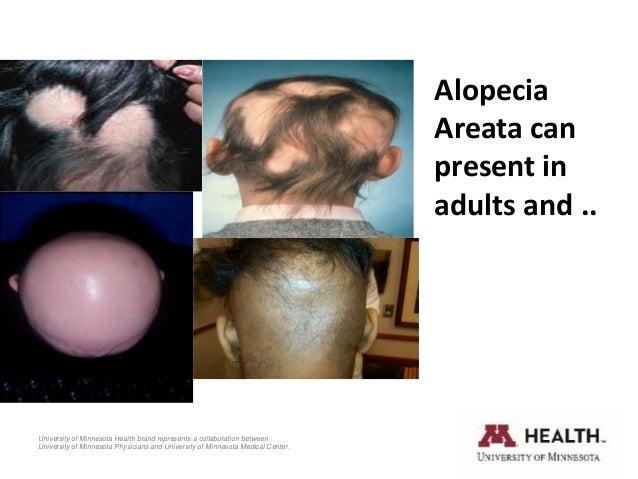 Current Treatment of Alopecia Areata Slide 2