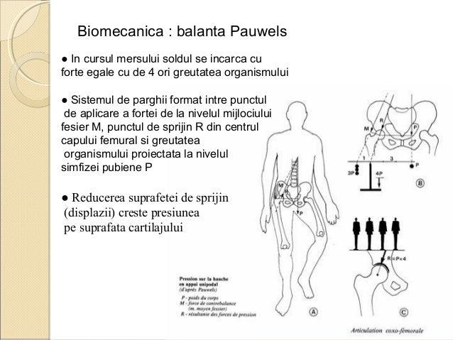 Coxartroza bilaterala genunchi