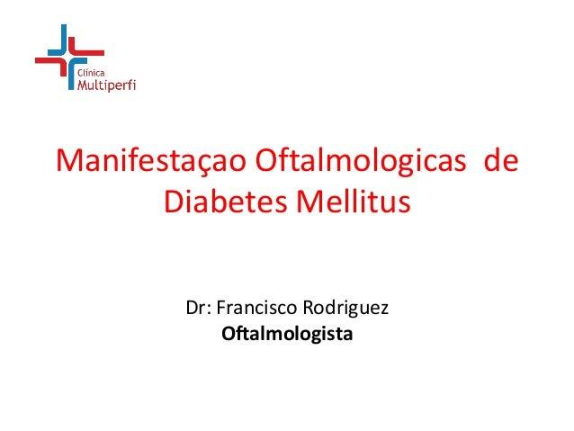 Manifestaçao Oftalmologicas de Diabetes Mellitus Dr: Francisco Rodriguez Oftalmologista