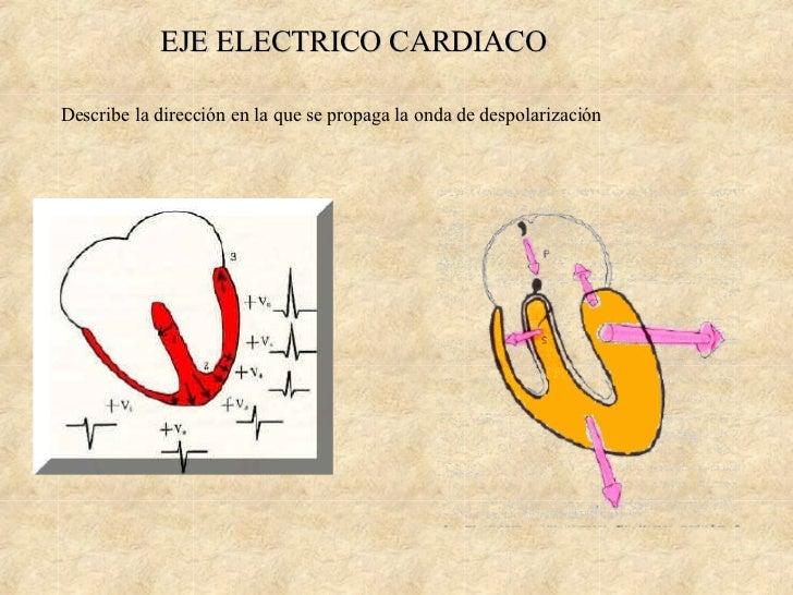 electrocardiograma Slide 3