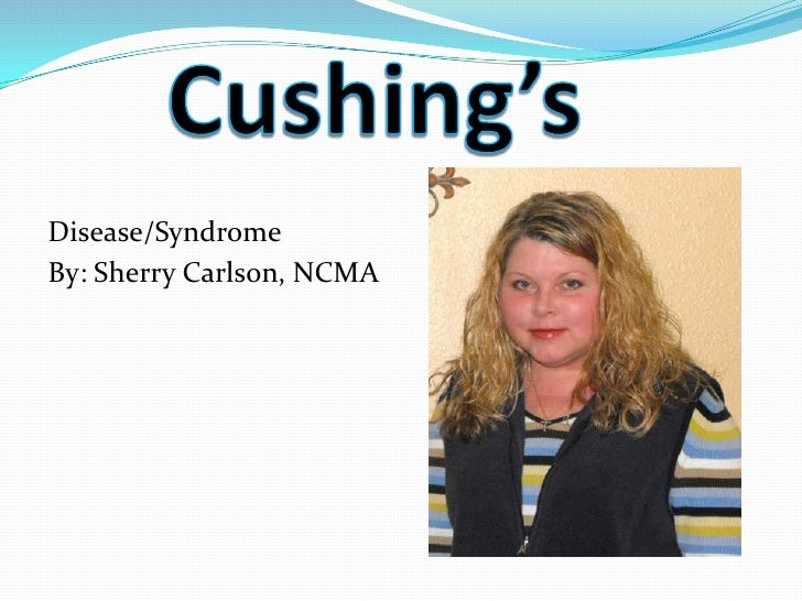 Disease/SyndromeBy: Sherry Carlson, NCMA