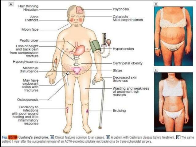 sindrome de cushing inducido por esteroides