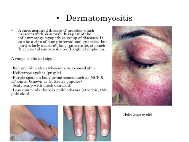 Cutaneous Presentation Of Tumours