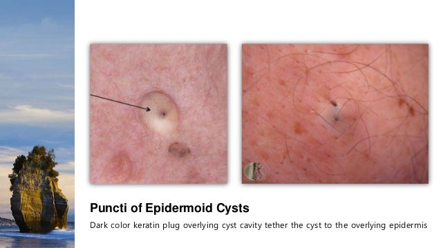 Cyst On Scrotum Sebaceous Cyst On Scro...