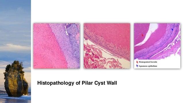 Cutaneous Cysts