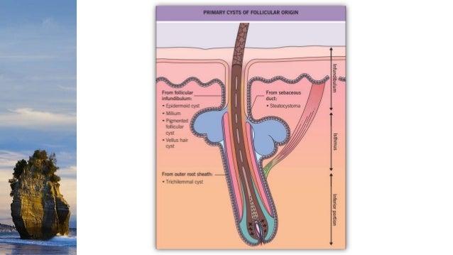 diagram of epidermal inclusion cyst wiring diagram libraries rh 25 nnmea com
