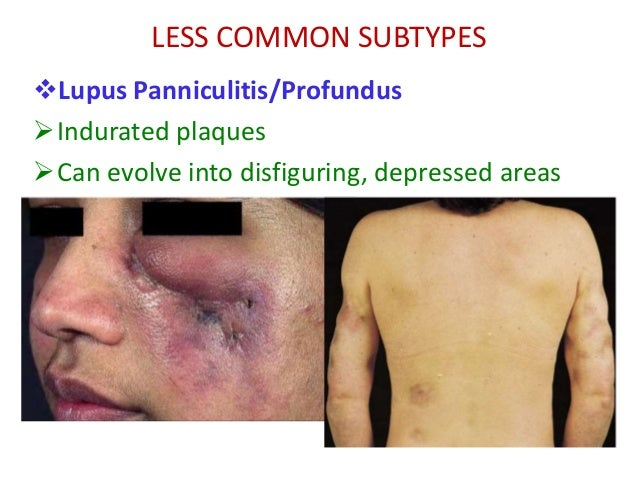Cutaneous lupus erythematosus