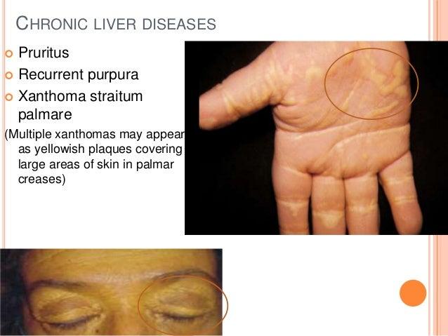 Cutaneous manifestations of internal diseases