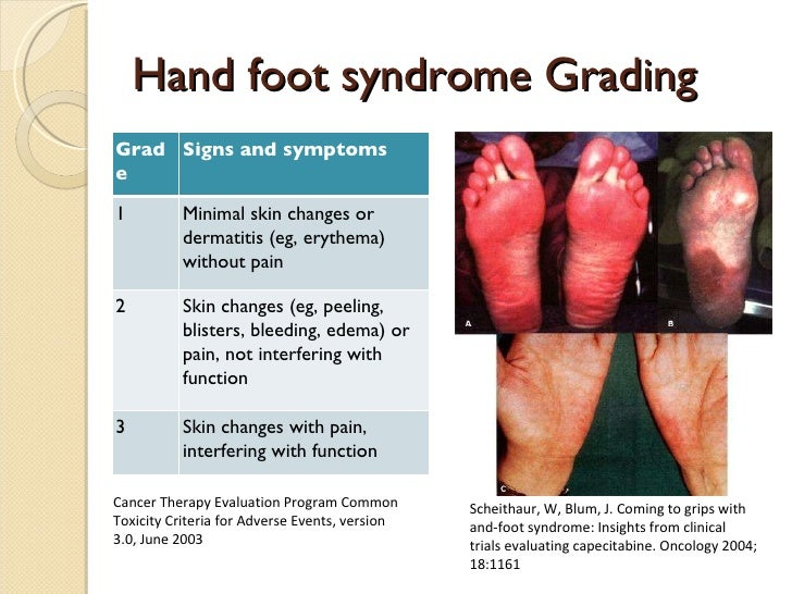 xeloda hand foot syndrome treatment
