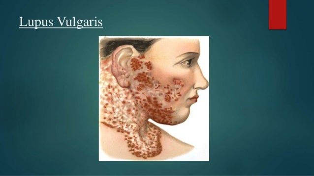 Tuberculosis skin lupus infection forms of treatment  |Skin Tuberculosis