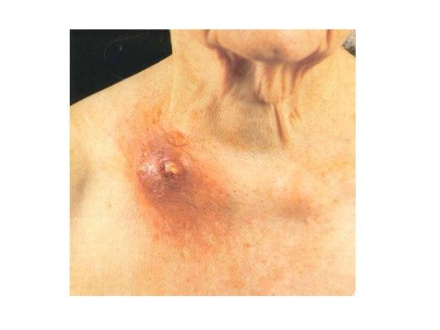 Cutaneous tuberculosis | DermNet NZ  |Skin Tuberculosis