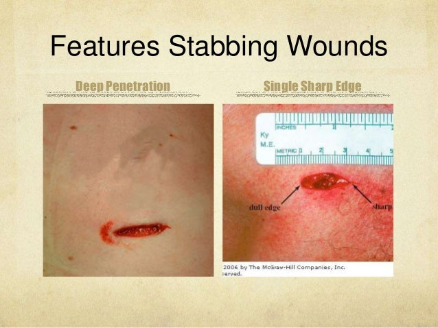 [Image: cutting-and-stabbing-wounds-criminal-doc...1430087512]