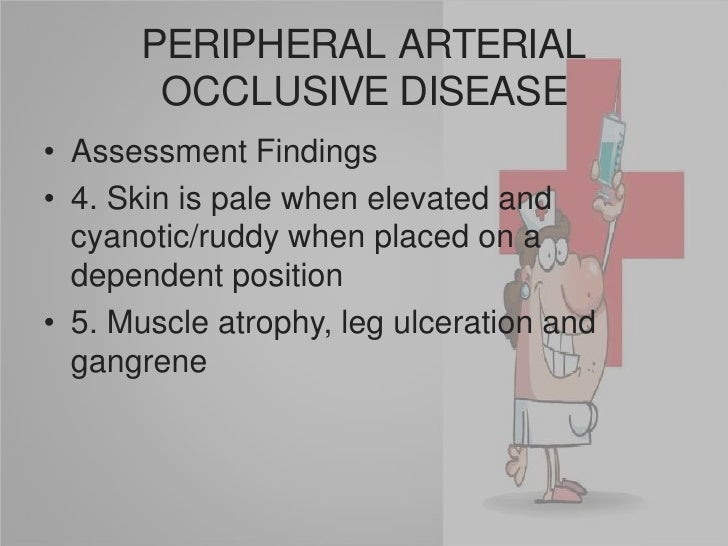Remind patient the need for serial ultrasound to detect diameter changes</li></li></ul><li>PERIPHERAL ARTERIAL OCCLUSIVE D...