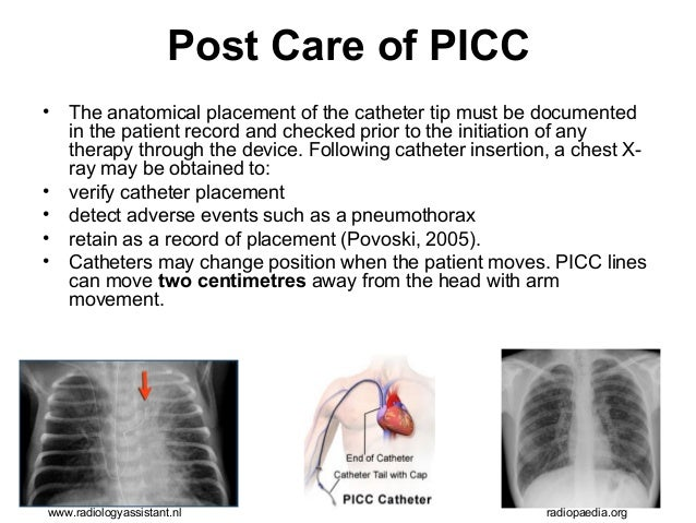 Cvad Management Care And Maintenance Radiology Nursing