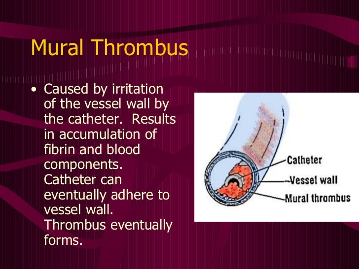 Central venous access devices made incredibly easy for Mural thrombosis