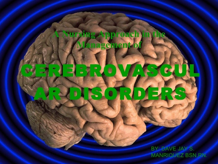 A Nursing Approach in the       Management of  CEREBROVASCUL  AR DISORDERS                          BY: DAVE JAY S.       ...
