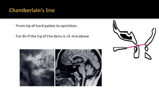 Joins anterior and posterior edges of Foramen magnum Tip of odontoid is below this line. When sagittal diameter of canal <...