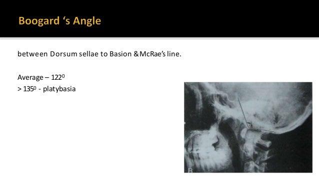 abnormally obtuse basal angle, may be asymptomatic, not a measure of basilar invagination. >140 basal angle.