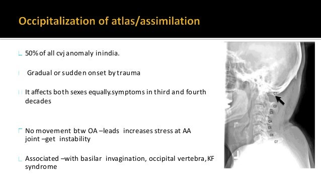 AAD - excessive movement at the junction between the atlas (C1) and axis (C2) as a result of either a bony or ligamentous ...