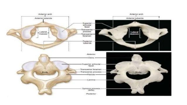  Principal stabilizing ligaments of C1- -Transverse atlantal ligament -Alar ligaments  Secondary stabilizing ligaments o...