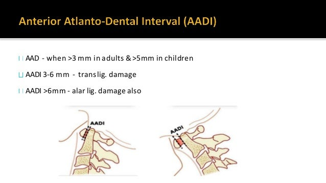 odontoid base is separate until the age of 8 Independent osseous structure lying cephalad to the axis body in the location...