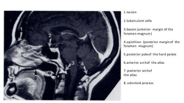 Cranio vertebral  junction anomalies